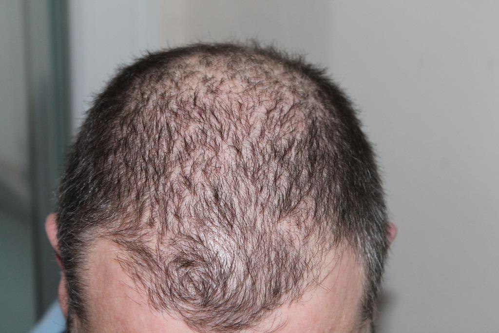 Alopécie, perte de cheveux, feuilles de goyave